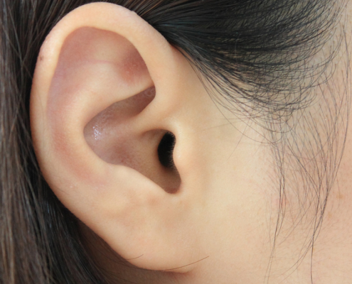 ACUPUNCTURE STANDS WEIGHT LOSS ON ITS EAR!